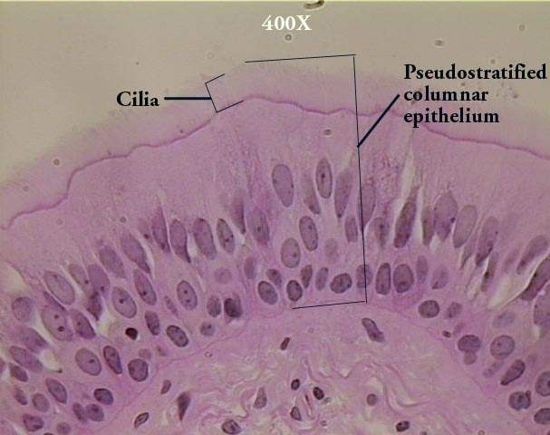 Image result for pseudostratified epithelium labeled