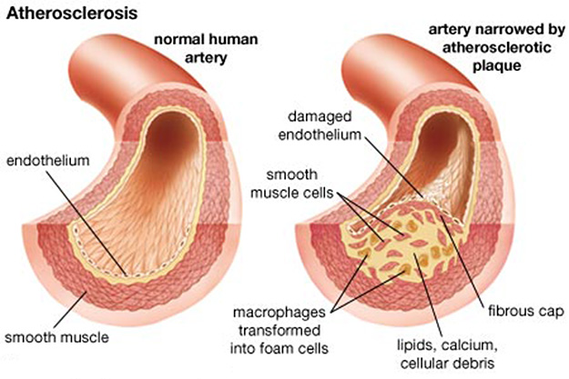 atherosclerosis : anatomy & physiology, Human Body