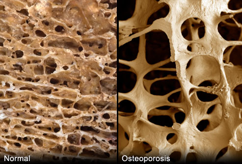 osteoporitic_bone_osteoperosis_vs_normal_bone